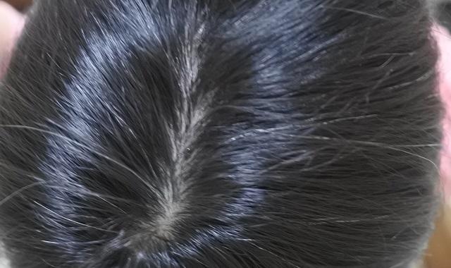 大島椿 白髪の状態