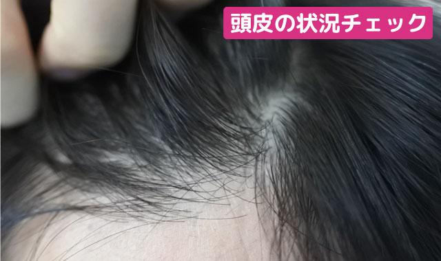 グローイングショット 頭皮の状態