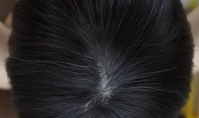 染める前の白髪状況